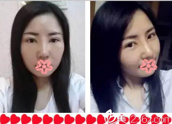 求助!亲们给我看下福州吴熙中医院的黎护忠给我做的鼻综合和双眼皮怎么样?