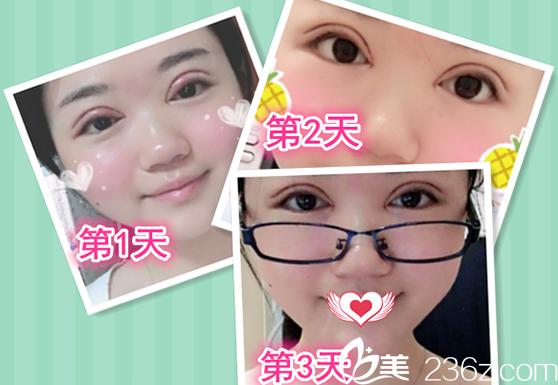 在蚌埠华美整形美容医院割双眼皮 开内眼角术后第1天-第3天恢复过程图