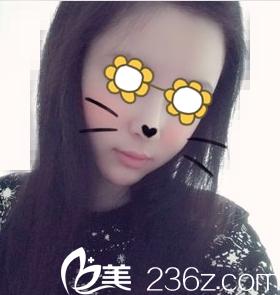 找沈阳盛京尚美医疗美容王超做自体脂肪填充全脸1个月全程记录
