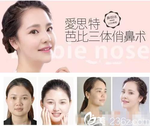 衡阳爱思特整形2018年隆鼻优惠【官方价格表曝光】