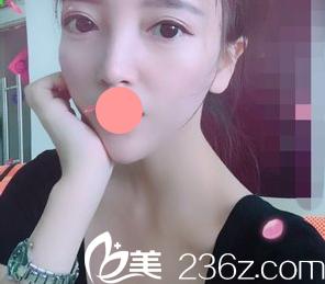看了我在阳泉美亚整形做的韩式三点双眼皮恢复效果,你有没有心动呢!