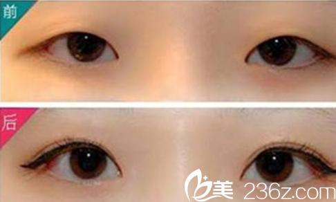 雅美整形高建红医生韩式双眼皮案例对比图