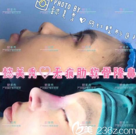 广州懿美秀罗辉院长自体肋软骨隆鼻子案例图