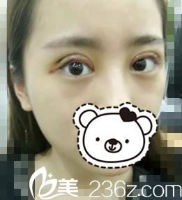 看单眼皮美女在鞍山崔芳整形门诊做的6mm双眼皮术后20图片