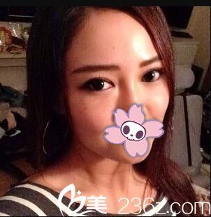 做销售的我找上海韩镜医院刘平做双眼皮,术后变得亲和力十足