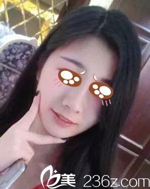 选择在郑州兰茜整形做隆鼻因为侧面实在丑到不行 术后肿胀较轻