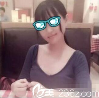 自从去上海九院找曹谊林做下颌角切除,老公越来越爱带我出去应酬了