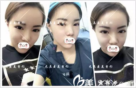 分享沈阳元辰医院一护士做全脸脂肪填充+假体隆下巴术后半个月历程
