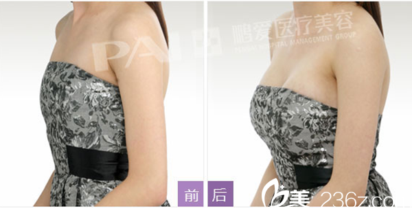 南昌鹏爱医疗美容医院胸部整形案例