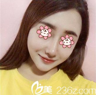 挑重庆木槿整形张绿峰做自体肋软骨鼻综合,事实证明我眼光不赖嘛!
