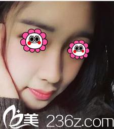 趁北京华韩医院鼻整形价格优惠,我找了谢立宁做了驼峰鼻矫正