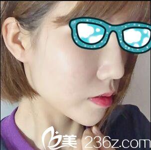 去韩国清潭第一找李丙玟做鼻综合,价格没有想象中那么的高