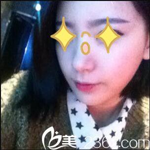 上海瑰康张智云为我打瘦脸针,没想到效果维持的这么久