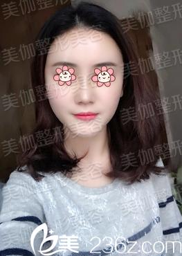 重庆美伽整形导医说她自己让刘怀朴做肋软骨隆鼻+自体脂肪填充额头+泪沟的过程