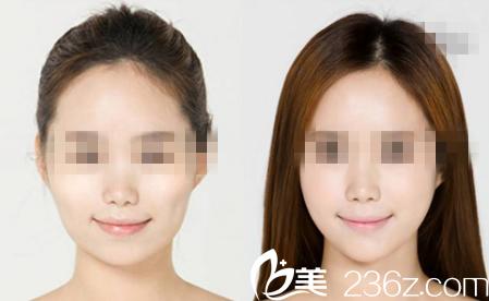 岳阳亚美BOTOX瘦脸针前后照