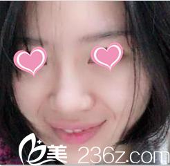 瞧我一人去北京百达丽找苏婷做鼻综合一个月效果如何