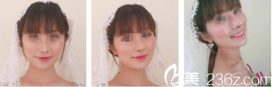 西安西京医院宋保强做的颧弓内推手术+下颌角切除手术价值6.5万,现在已经不难受了破茧成蝶就是这么个道理