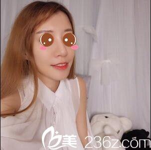 上海美立方杨树彬做的面部脂肪填充,让我的面相看上去更完美