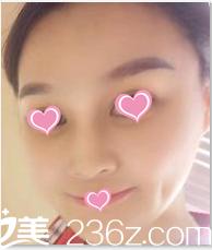 半年前我25岁在北京八大处找李发成做了全脸脂肪填充