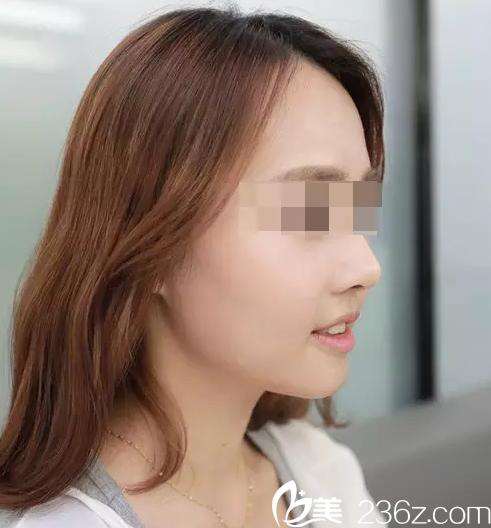 岳阳亚美整形案例隆鼻+面部填充,从面黄肌瘦到美丽动人