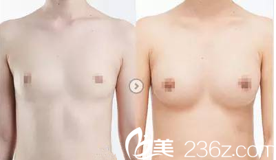哈尔滨解放军211假体隆胸真人案例