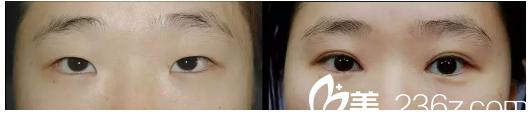 徐州四院和徐州市中心医院什么关系?整形美容中心的周同葵做双眼皮有案例吗