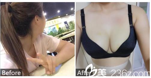 广州广大整形美容医院曹壁浪自体脂肪隆胸案例