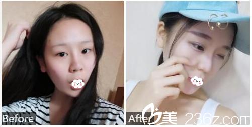 广州广大整形美容医院王政双眼皮案例