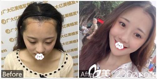 广州广大整形美容医院李青辉种植发际线案例