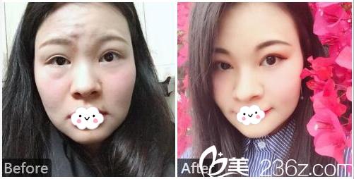 广州广大整形美容医院张青春内切去眼袋案例