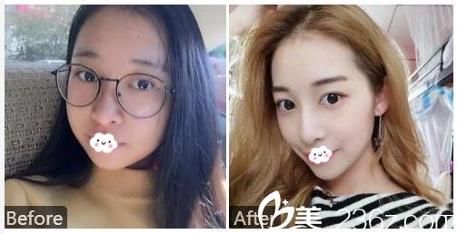 广州广大整形美容医院张青春膨体隆鼻案例