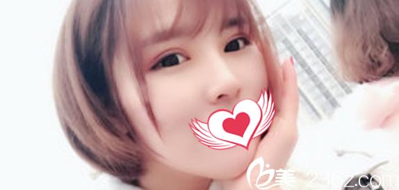 亳州康美皮肤病医院程广龙术后照片1