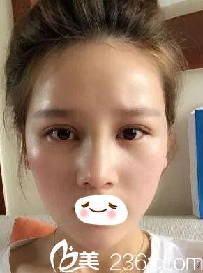 汪涌医生眼鼻修复术后半个月