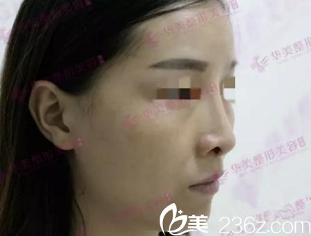 修复前的鼻部侧面
