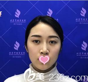 北京健宫医院医疗美容科贾铁利术前照片1