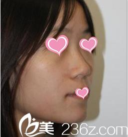 北京幸福医疗美容医院曹勇术前照片1