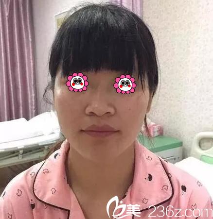 保定宝特医疗美容整形诊所梁骞术前照片1