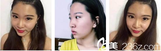 烟台青韩整形美容医院施问国术前照片1