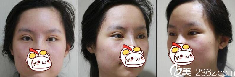 上海华美医疗美容医院佀同帅眼综合真人案例术后第七天