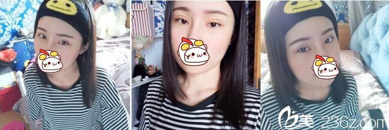 上海华美医疗美容医院佀同帅眼综合真人案例术后二十天