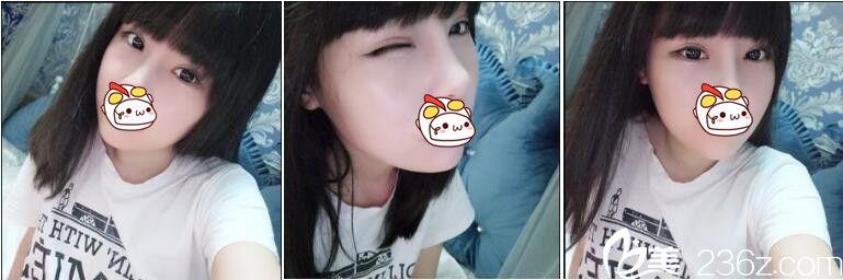 关于上海华美佀同帅做双眼皮的个人感想,切开法双眼皮+上睑提肌术后一个月日志