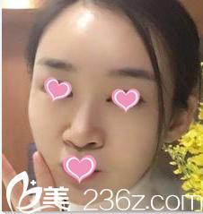 北京瑞妍茗医整形医院鲁树荣术后照片1