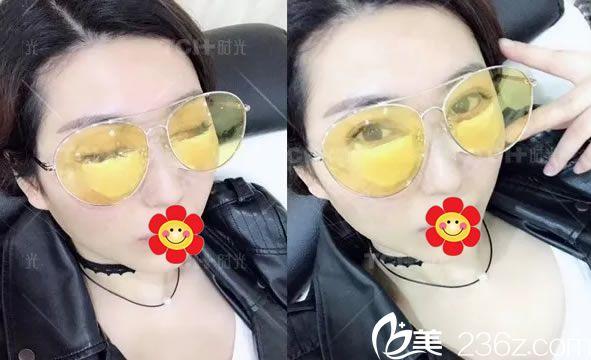 手术后装的假眼球图片_90后妹妹选择杭州时光吕敏做了内切祛眼袋手术,成功摆脱比我还显老的