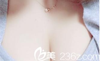 胸部硅胶假体取出同时在北京八大处找穆大力做了脂肪隆胸,价格优惠