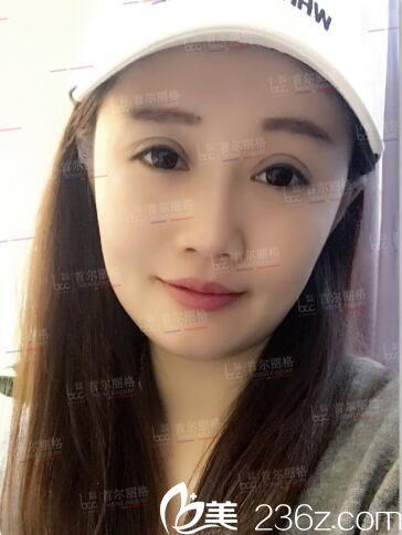 上海首尔丽格朴相根做的双眼皮技术真的不是吹的,术后三个月的真实感受