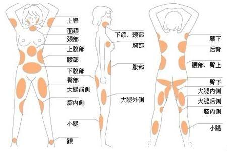 柳州解放军158医院整形科水动力吸脂