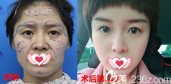 女生在合肥蜜雪尔(德尔美客)整形美容医院做自填脂肪填充全脸案例效果展示