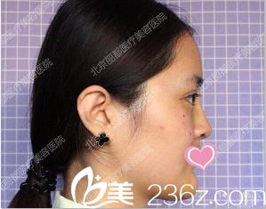 陈女士分享3月在北京丽都医院找刘宁做韩式双眼皮和韩式隆鼻效果对比照