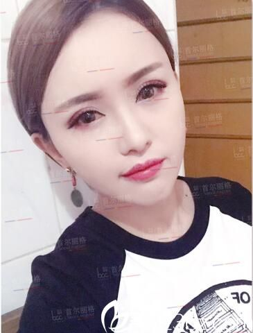 辣妈为了留住青春找上海首尔丽格金柱做面部脂肪填充,术后效果还挺自然的