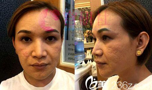 韩国丽珍整形外科SMAS提升+V脸,50老太变少妇